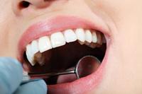 最近の口腔癌について