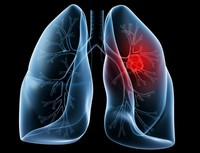 がん検診で肺がんを早期発見・治療