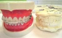 歯が・・・