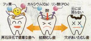 虫歯の様子