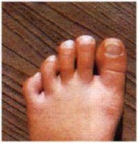 """""""運動会""""が終わった後のお子さんの足は、どうなってますか?"""""""