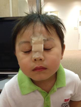 先日、息子がおデコを2針縫う ... : 三歳 勉強 : すべての講義